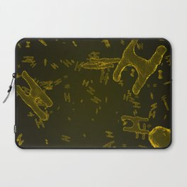 Abstract yellow virus cells Laptop Sleeve