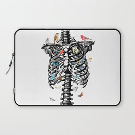 The Cage Laptop Sleeve