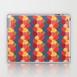 Rosie Stripes Laptop & iPad Skin