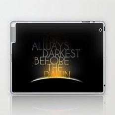 Shake It Out Laptop & iPad Skin