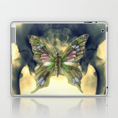 Experiment 5: Camouflage Laptop & iPad Skin