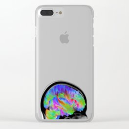 Brains in Color Clear iPhone Case