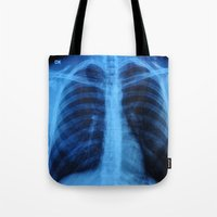 medical Tote Bags featuring x ray medical radiography by tony tudor
