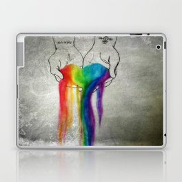 Agape Laptop & iPad Skin