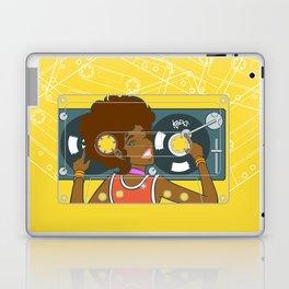 Köpke's Mixtape Laptop & iPad Skin