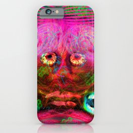 Overactive Brain iPhone Case