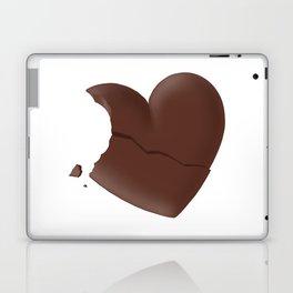 Love Bites #hatetolove Laptop & iPad Skin