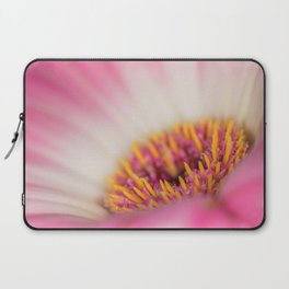 Sexy Pink Makes You Think Laptop Sleeve
