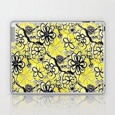 Sunny Sixties  Laptop & iPad Skin
