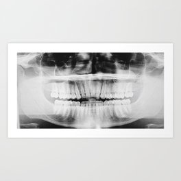 Perfect X-Ray Art Print