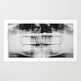 Perfect X-Ray Art Print