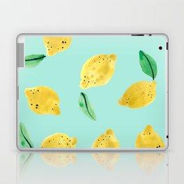 Lemons Laptop & iPad Skin
