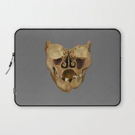 Coronal Section Laptop Sleeve