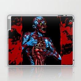 CADAVER Laptop & iPad Skin