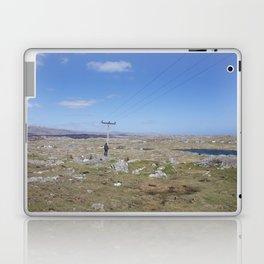 Golden Highway Lewis and Harris 2 Laptop & iPad Skin