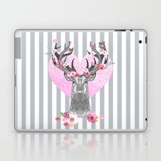 YOUNG LOVE Laptop & iPad Skin