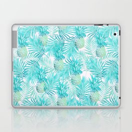 Turquoise Palm Leaves and Pineapples on Pink Laptop & iPad Skin