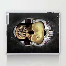 ...WAS     (Skull series 3 of 3) Laptop & iPad Skin