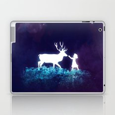 Connect Laptop & iPad Skin