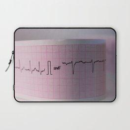 Strip of a human electrocardiogram Laptop Sleeve