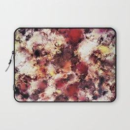 Compression Laptop Sleeve