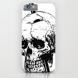 Skull of Phineas Gage With Tamping Iron iPhone Case