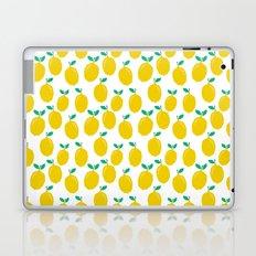 Lemons - Tropical citrus summer fresh modern pattern bright garden vegetables vegan Laptop & iPad Skin