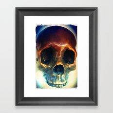 All You Need is Skull. Framed Art Print