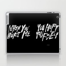 HURT URSELF Laptop & iPad Skin