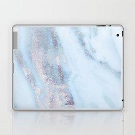 Light Blue Gray Marble Laptop & iPad Skin