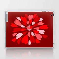 Love Is / Hearts Galore Laptop & iPad Skin