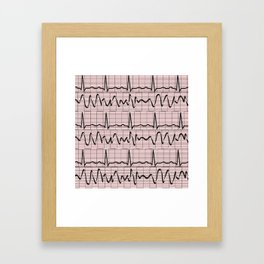 Cardiac Rhythm Strips EKG Framed Art Print