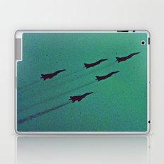 Jetspeed Laptop & iPad Skin