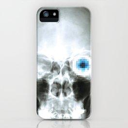 Rx_eye iPhone Case