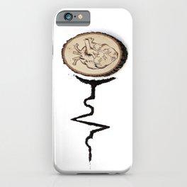 Heart Beat Art iPhone Case