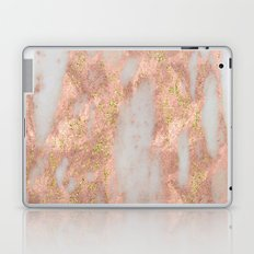 Rose Gold Marble with Yellow Gold Glitter Laptop & iPad Skin