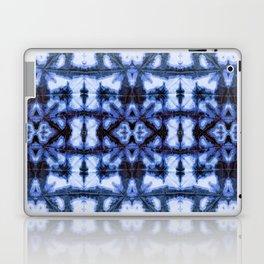 Blue Oxford Shibori Laptop & iPad Skin