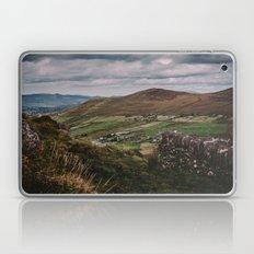 The Irish Countryside Laptop & iPad Skin