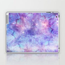 Purple Galaxy - Psychedelic Summer Series by iDeal Laptop & iPad Skin