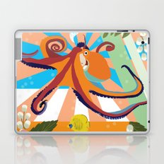 what are we doing? Laptop & iPad Skin