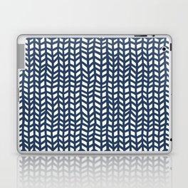 Chevrons Laptop & iPad Skin