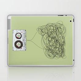 Analog Unravelled Laptop & iPad Skin