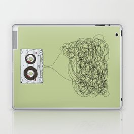 Analog Unravelled Laptop & iPad Skin