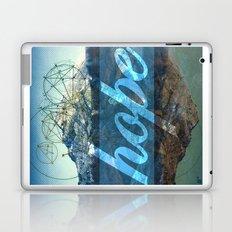 HOPE (1 Corinthians 13:13) Laptop & iPad Skin