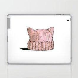 Women Power! Laptop & iPad Skin