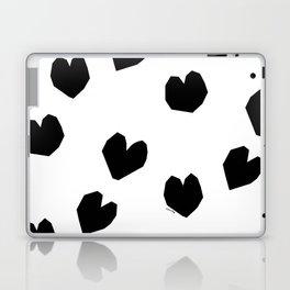 Love Yourself no.2 - black heart pattern love art black and white illustration Laptop & iPad Skin