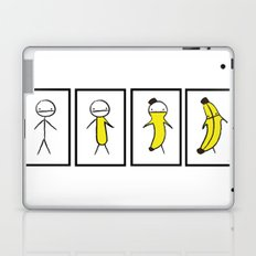 Banana Metamorphosis Laptop & iPad Skin
