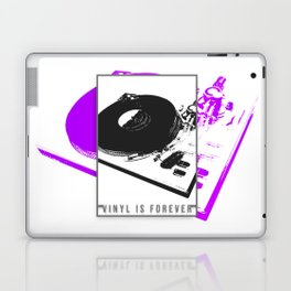 Vinyl is forever print Laptop & iPad Skin
