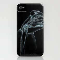 Puppet Check Up Slim Case iPhone (4, 4s)