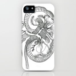 Human Kidney iPhone Case